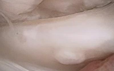 Rottura a manico di secchio del menisco interno del ginocchio destro
