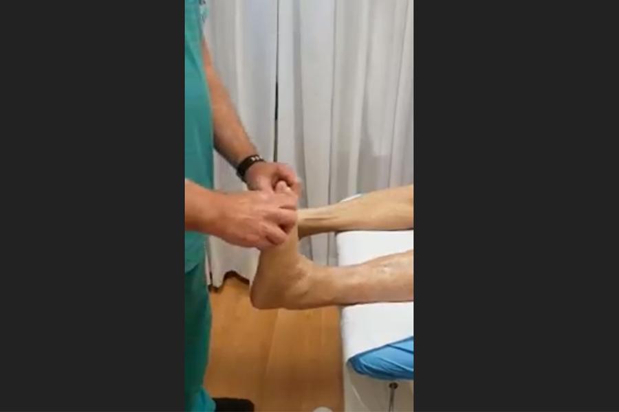 Protesi di caviglia. A 6 mesi dall'intervento il paziente già cammina e ringrazia il Dott Alessandro Caprio.