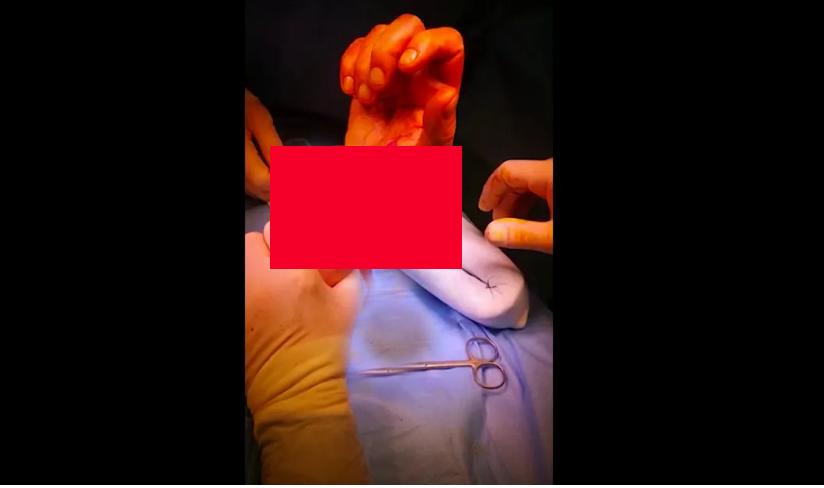 Intervento in anestesia locale di ricostruzione tendine flessore radiale del Carpo