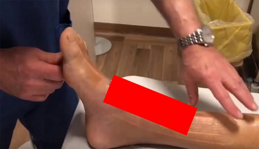 Protesi di caviglia ad una settimana dell'intervento