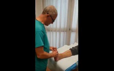 Caviglia a 5 mesi dall'intervento chirurgico con impressioni del paziente