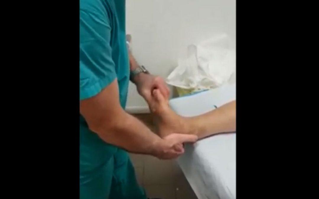 Protesi di caviglia a 3 mesi e mezzo dall'intervento chirurgico