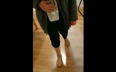 Valutazione di una protesi di caviglia destra operata dopo 6 mesi con impressioni del paziente